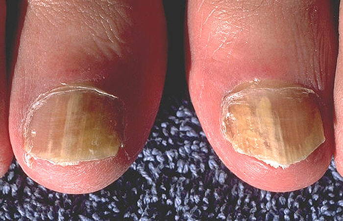 Грибок между пальцами ног - чем лечить? Фото, мази