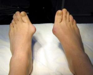 kostochki na nogah