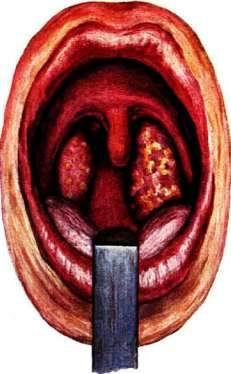 angina1.jpg