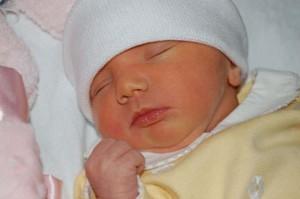 Фото желтухи у новорожденных