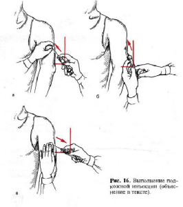 техника подкожной инъекции3