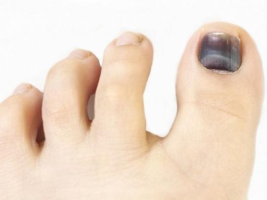 Почерневшие ногти на больших пальцах ног