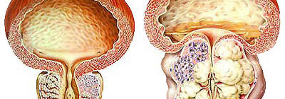 Камни предстательной железы - симптомы и лечение
