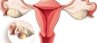 Многокамерная киста яичника - лечение