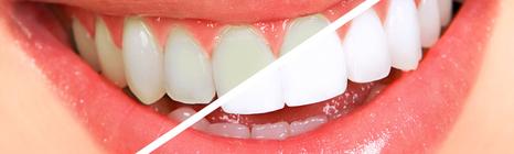Действенные методы отбеливания зубов в домашних условиях без вреда эмали