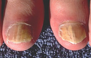 fungal_nail_infection