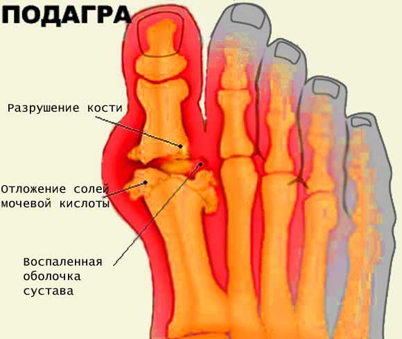 Лечение болезни подагра