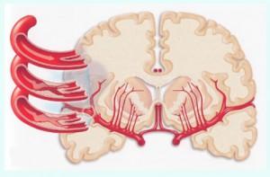 simptomy-microinsylta