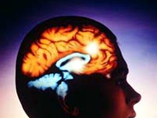Какие последствия инсульта головного мозга