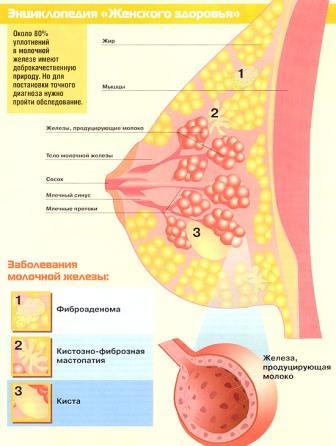 Форум о лечении мастопатии кладезь информации