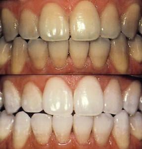 отбелить зубы дома
